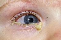 нагноение глаз
