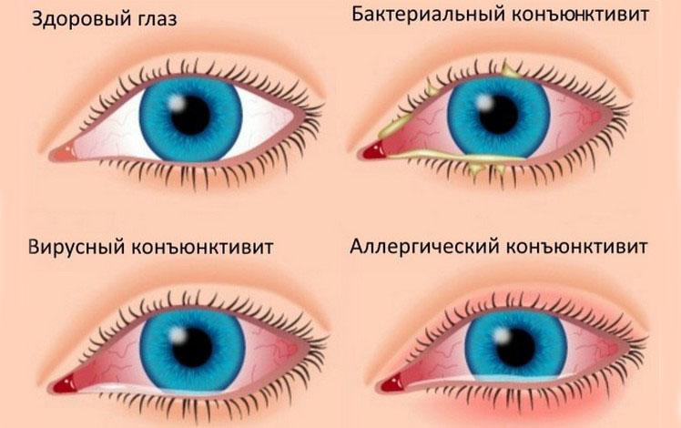 типы воспаления глаз