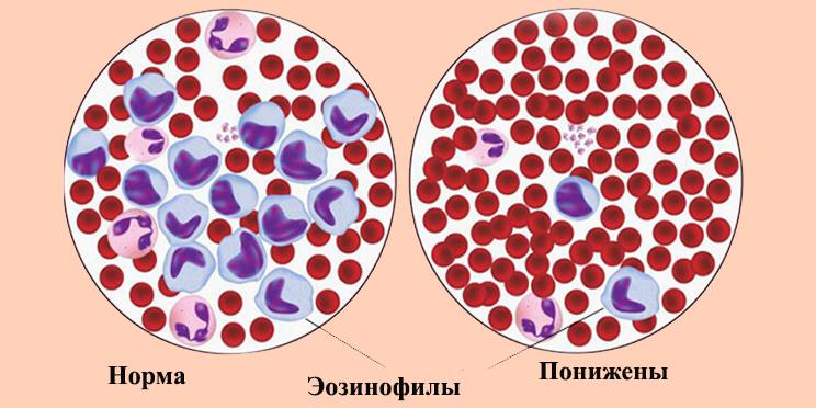 Понижены эозинофилы в крови при беременности — Симптоматика боезней