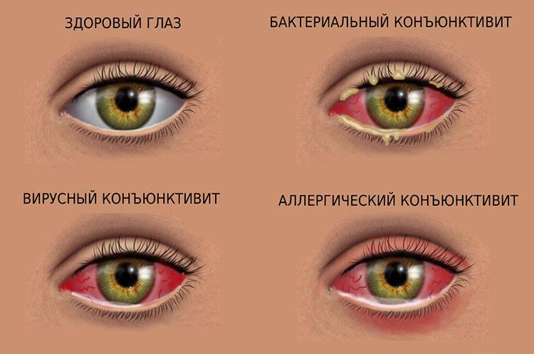 симптомы воспаления глаза